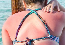 Schnelle Hilfe bei Sonnenbrand