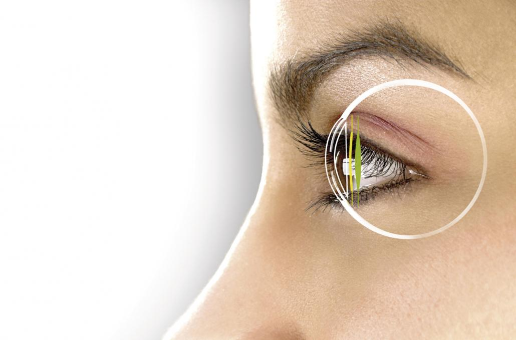 Die AddOn® Linse wird zusätzlich zur Intraokularlinse eingesetzt, um Brechungsfehler auszugleichen